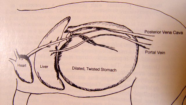 Diletacija i torzija želuca